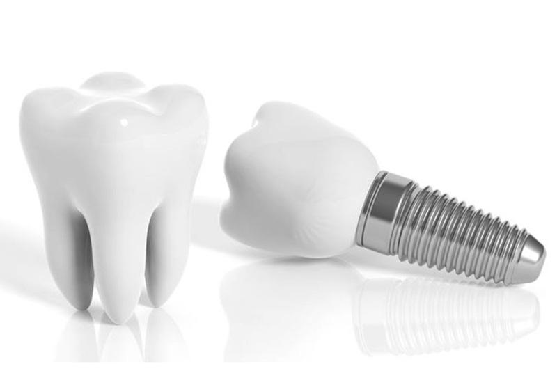 Zahnarztpraxis Mügeln - Implantologie-2