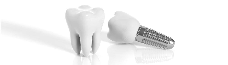 Zahnarztpraxis Mügeln - Implantologie
